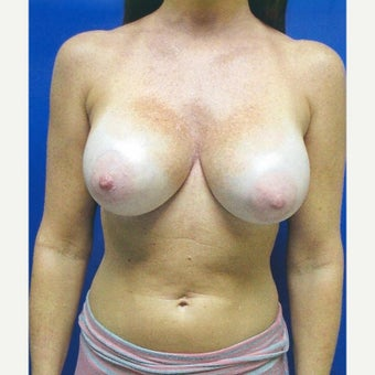 42 year old woman treated with Breast Augmentation after 1981528