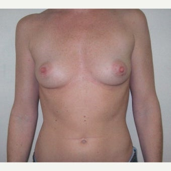 42 year old woman treated with Breast Augmentation before 1981528
