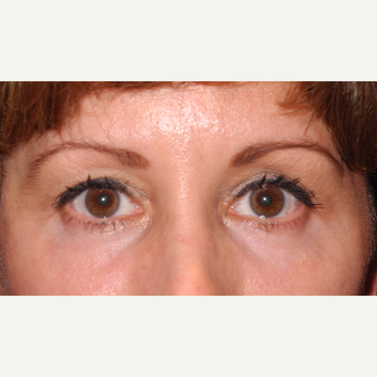 45-54 year old woman treated with Eyelid Surgery after 3703064