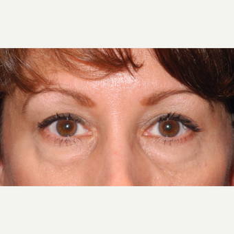 45-54 year old woman treated with Eyelid Surgery before 3703064