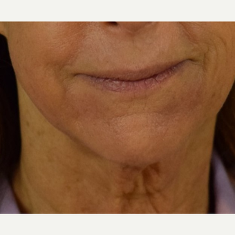 Before and after HALO Laser for Perioral Lines  after 3169609