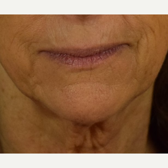 Before and after HALO Laser for Perioral Lines  before 3169609