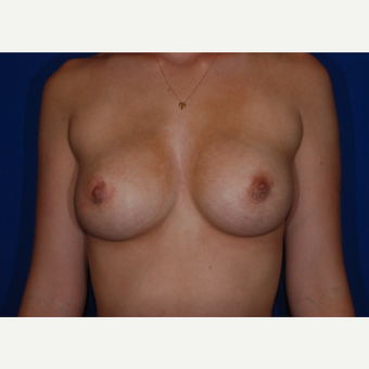 18-24 year old woman treated with Breast Implant Revision after 3695094
