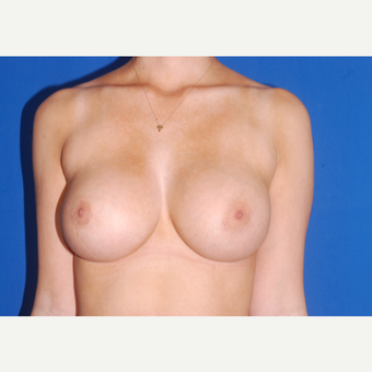 18-24 year old woman treated with Breast Implant Revision before 3695094