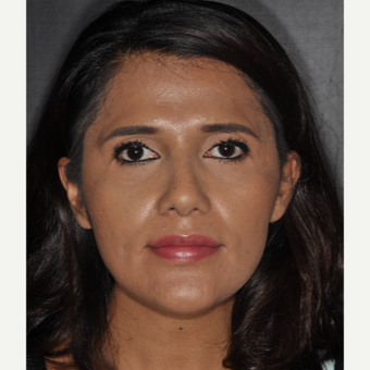 25-34 year old woman treated with Nose Surgery 10 days post-op after 3452313