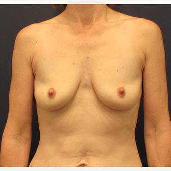 45-54 year old woman treated with Breast Augmentation before 3345168