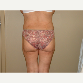 25-34 year old woman treated with Liposuction after 3454776