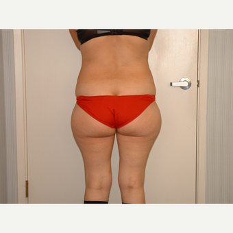 25-34 year old woman treated with Liposuction before 3454776