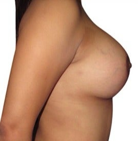 25-34 year old woman treated with Breast Lift with Implants after 1634726