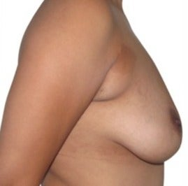 25-34 year old woman treated with Breast Lift with Implants before 1634726