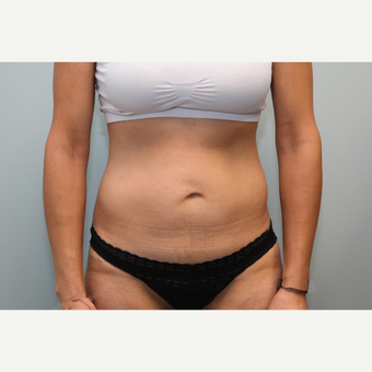 25-34 year old woman treated with Mini Tummy Tuck before 3797339