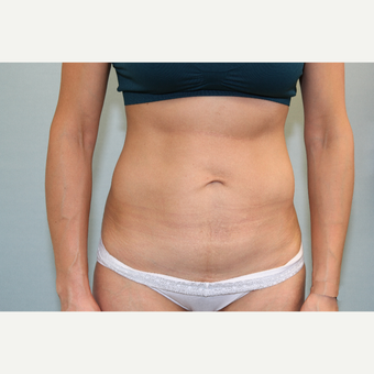 25-34 year old woman treated with Mini Tummy Tuck after 3797339