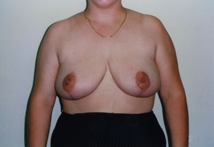 Breast Reduction after 1409089