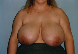Breast Reduction before 1409089