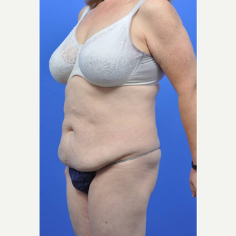 45-54 year old woman treated with Tummy Tuck before 3489510