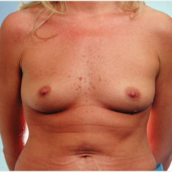 25-34 year old woman treated with Breast Implants before 3429591
