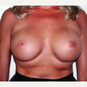 25-34 year old woman treated with Breast Implants after 3429591