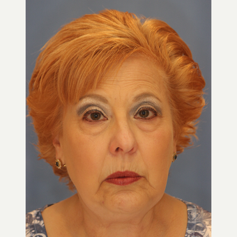 65-74 year old woman treated with Lower Eyelid Surgery before 3065073