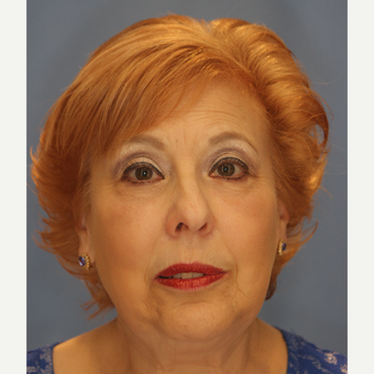 65-74 year old woman treated with Lower Eyelid Surgery after 3065073
