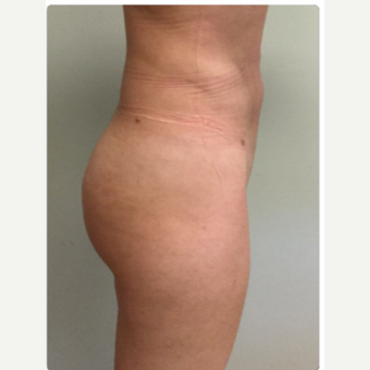 25-34 year old woman treated with Smart Lipo after 3098193