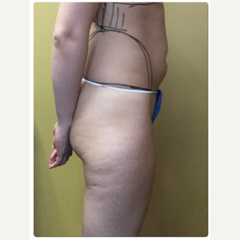 25-34 year old woman treated with Smart Lipo before 3098193