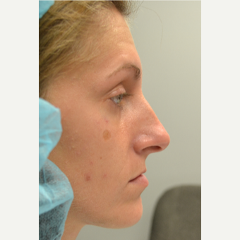 25-34 year old woman treated with Rhinoplasty before 3028817