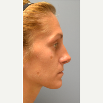 25-34 year old woman treated with Rhinoplasty after 3028817
