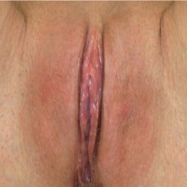 Labiaplasty after 1897545
