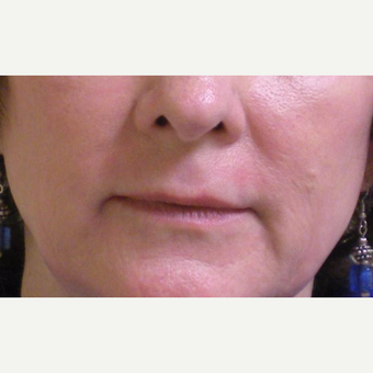 55-64 year old woman treated with Restylane before 3372448