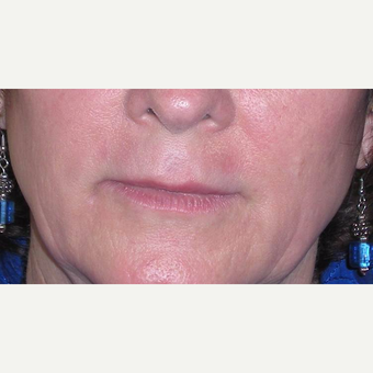55-64 year old woman treated with Restylane after 3372448