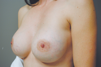 Inspira Breast Implants after 1515965