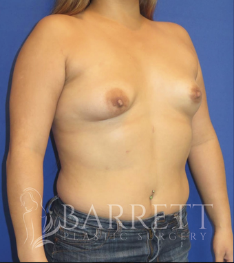 25-34 year old woman treated with Breast Augmentation 3663554