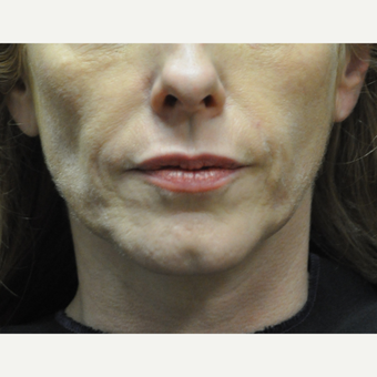 45-54 year old woman treated with Sculptra before 3212446