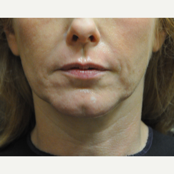 45-54 year old woman treated with Sculptra after 3212446
