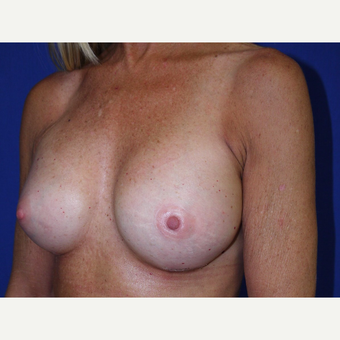 Breast Augmentation after 3743706