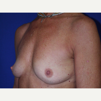 Breast Augmentation before 3743706