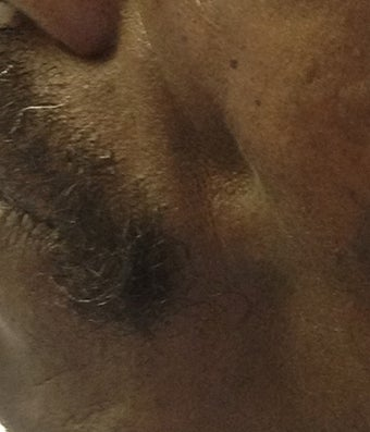 Male Patient Treated with Sculptra