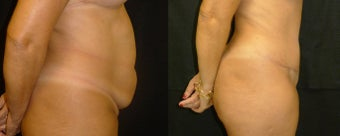 48 y/o female patient that underwent a Tummy Tuck after 1183761