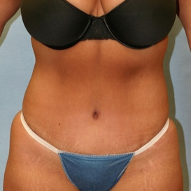 35-44 year old woman treated with Tummy Tuck after 1679407