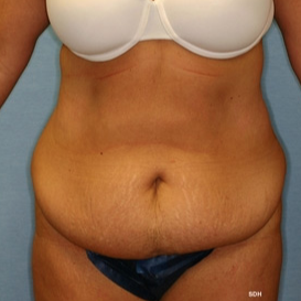 35-44 year old woman treated with Tummy Tuck before 1679407