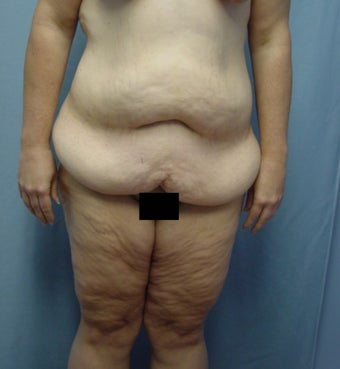 45 year old Tummy tuck after weight loss 65# before 923718