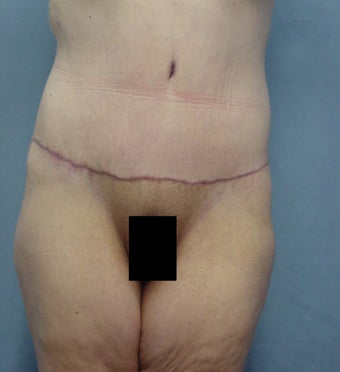 45 year old Tummy tuck after weight loss 65# after 923718