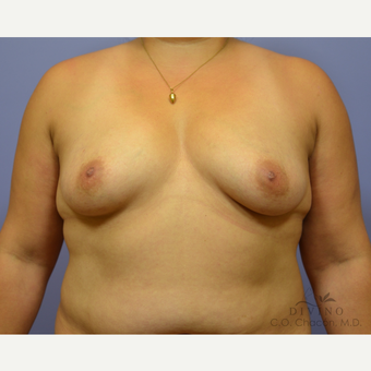 35-44 year old woman treated with Breast Augmentation before 3329356
