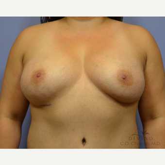 35-44 year old woman treated with Breast Augmentation after 3329356