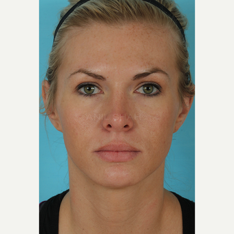 25-34 year old woman treated with Rhinoplasty after 3690995