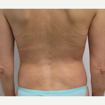 40 Year Old Woman who was treated with Smart Laser Liposuction after 2337032