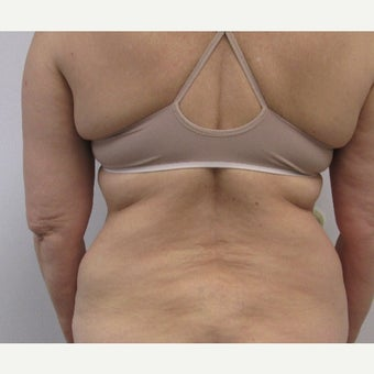 40 Year Old Woman who was treated with Smart Laser Liposuction before 2337032