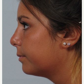 18-24 year old woman treated with Rhinoplasty after 3261553