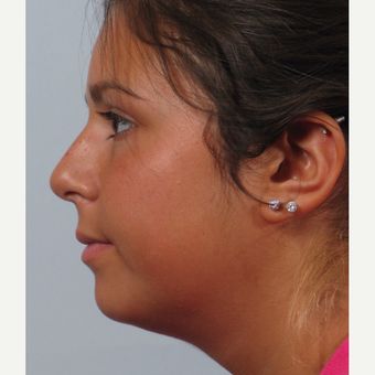 18-24 year old woman treated with Rhinoplasty before 3261553