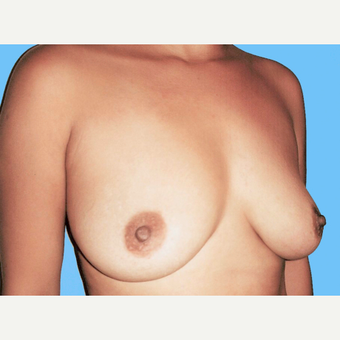 Breast Augmentation before 3731630